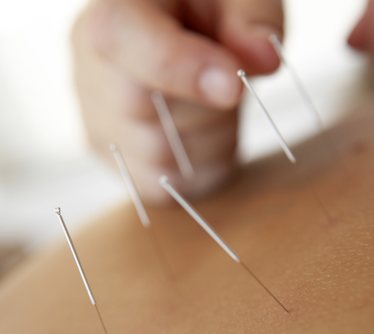 acupuncture needles for chronic pain